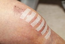 Photo of How Long Does A Surgical Incision Take To Heal?