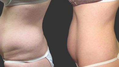 Photo of What to expect from a body contouring treatment?