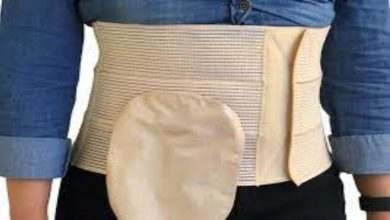 Photo of Random tips on the use of ostomy belts.