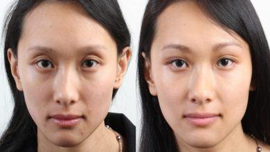 Photo of Botox Eyebrow Lift Melbourne Australia