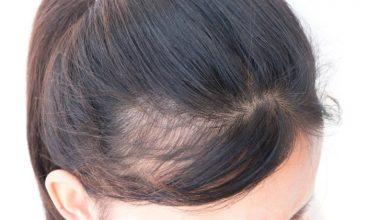 Photo of Early Balding – What to Do? Signs, Causes & Prevention